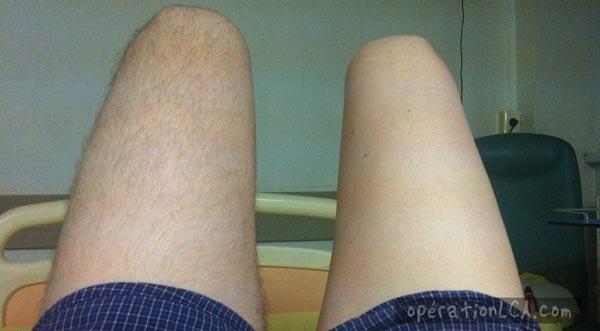 jambe rasée avant opération